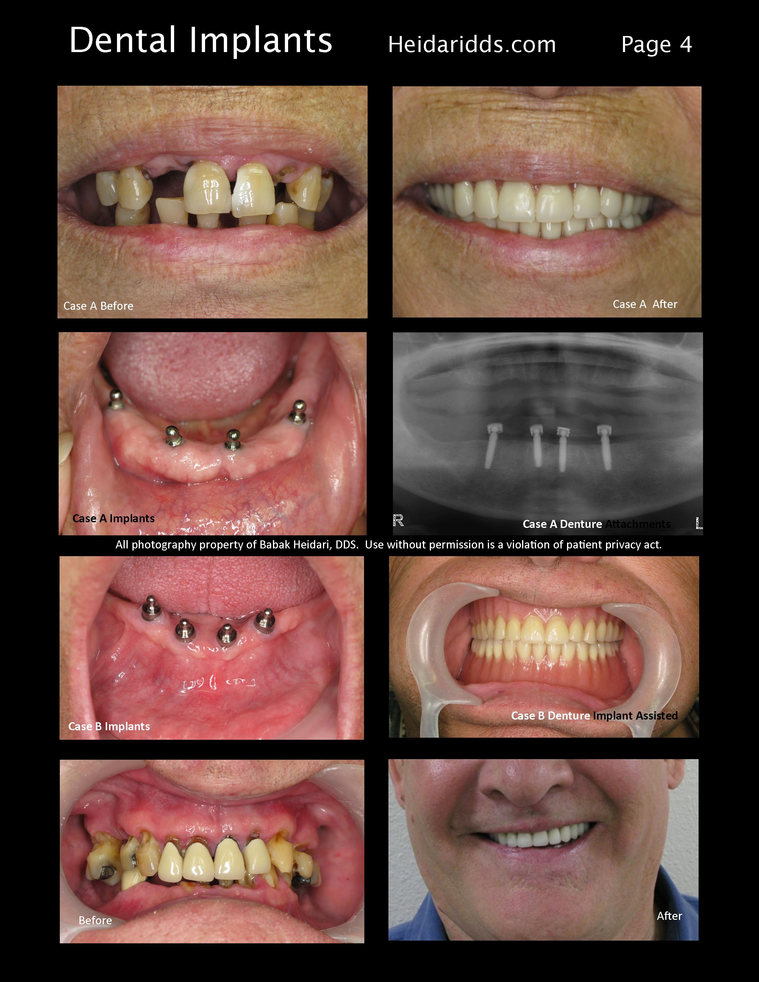 Implants With Dentures 4 South Coast Dental Group